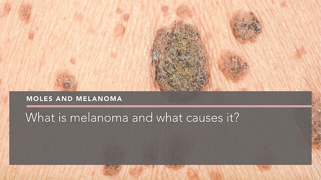 What Is Melanoma And What Causes It?