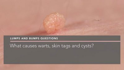 what-causes-warts-skin-tags-and-cysts--dermatologist-berkshire-penelope-pratsou