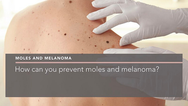 how-can-you-prevent-moles-and-melanoma-dermatologist-berkshire-penelope-pratsou
