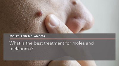 what-is-the-best-treatment-for-moles-and-melanoma-dermatologist-berkshire-penelope-pratsou