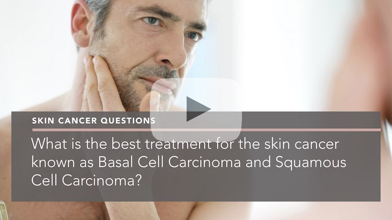 What Is The Best Treatment For Skin Cancer Known As Basal Cell Carcinoma And Squamous Cell Carcinoma Penelope Pratsou Reading Dermatologist