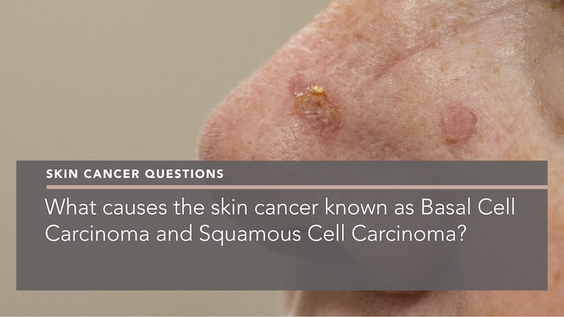 What Causes The Skin Cancer Known As Basal Cell Carcinoma And Squamous Cell Carcinoma Penelope Pratsou Reading Dermatologist