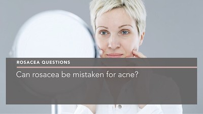 Can rosacea be mistaken for acne penelope pratsou reading dermatology berkshire