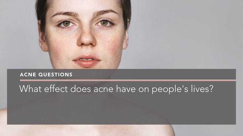 what effect does acne have on peoples lives dermatologist berkshire penelope pratsou