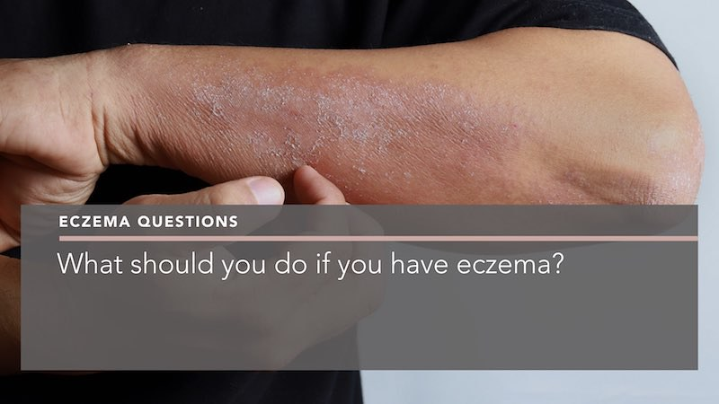 What should you do if you have eczema dermatologist berkshire penelope pratsou
